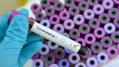 Photo of صفاقس: تسجيل 24 حالة إصابة مؤكدة جديدة بفيروس الكورونا في أخر تحيين للحالة الوبائية